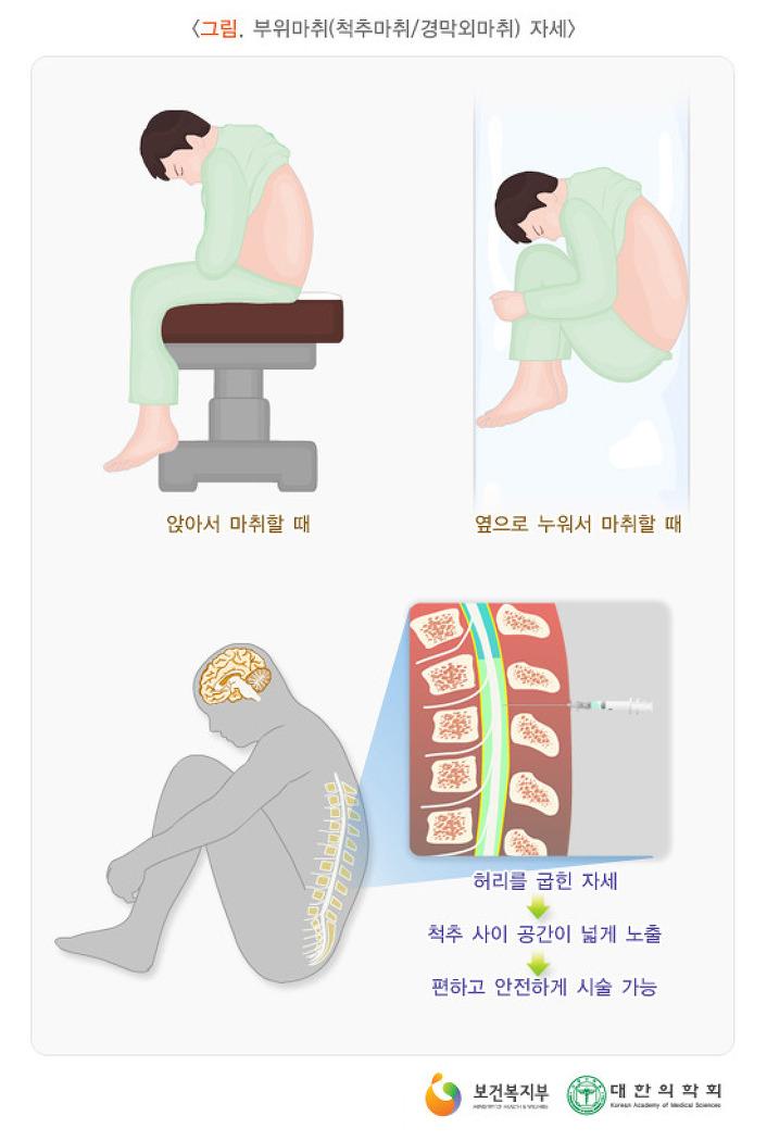 치질수술후기 -1편-9.29