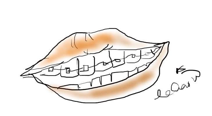 30대 치아교정, 치아교정 후 식사, 치아교정 후기,