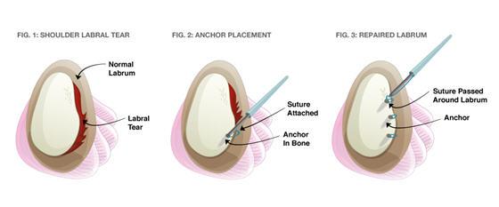 어깨 관절경 수술: 관절와순 봉합